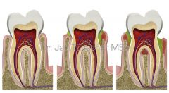 Entstehung einer Parodontitis