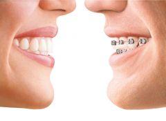 Herausnehmbare oder festsitzende Zahnspange