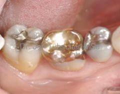 <p>Gold und Amalgam in direktem Kontakt bilden ein galvanisches Element.</p>