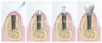 Freilegung und prothetische Versorgung eines Implantates