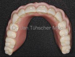 Implantatfixierter gaumenfreier Zahnersatz
