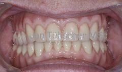 Implantatfixierter gaumenfreier Zahnersatz eingesetzt