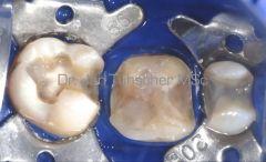 <p>Nach Entfernung von Karies und Aufbau der Zähne mit Unterfüllungen schimmern noch immer durch Amalgam verfärbte Dentinanteile durch</p>
