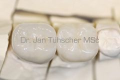 Linker Zahn eine metallkeramische Verblendkrone (Goldlegierung) und direkt daneben eine Vollkeramikkrone aus Lithiumdisilikatkeramik.