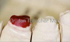Zahnpräparation für Kronen
